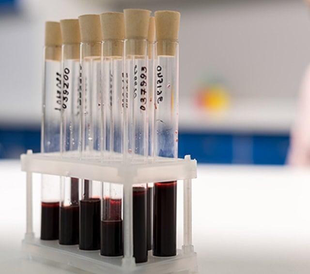 Test Tubes for Medical Laboratories