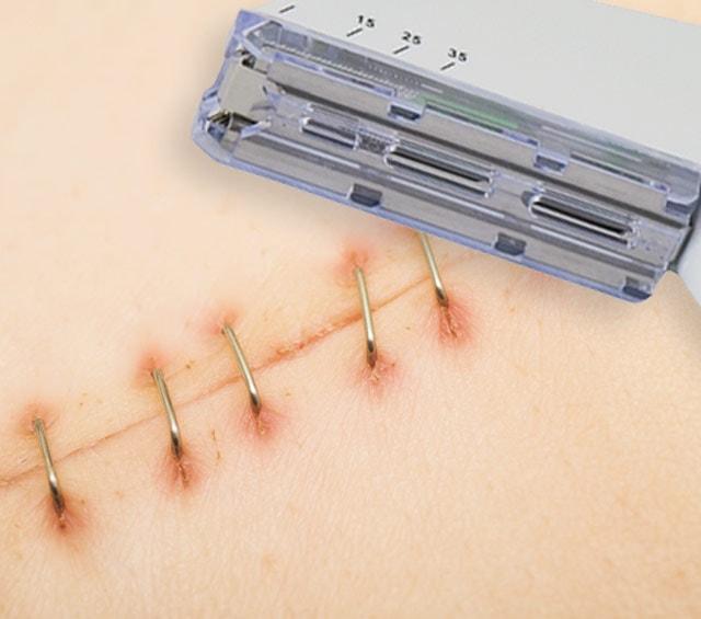 Hautklammergerät für den Wundverschluss mit Wundklammern