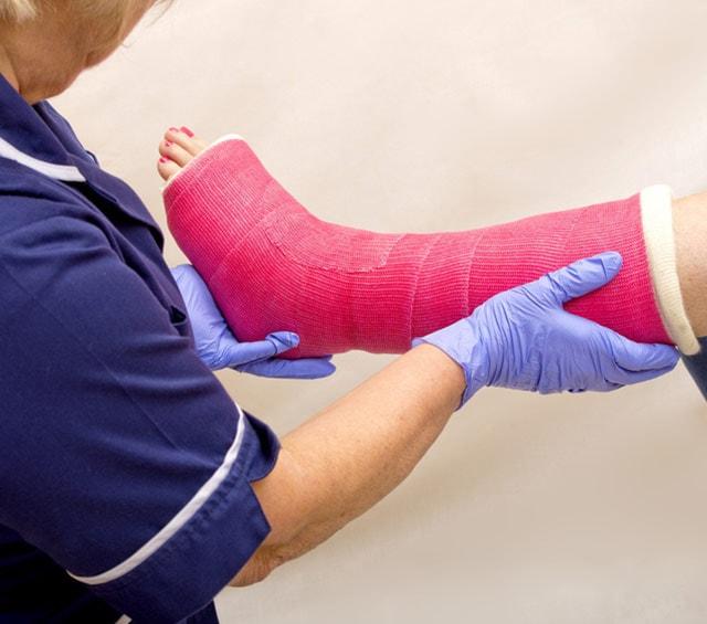 Plâtre synthétique pour une immobilisation en cas de blessures des extrémités