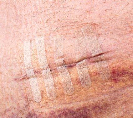 Bandelettes de suture adhésives