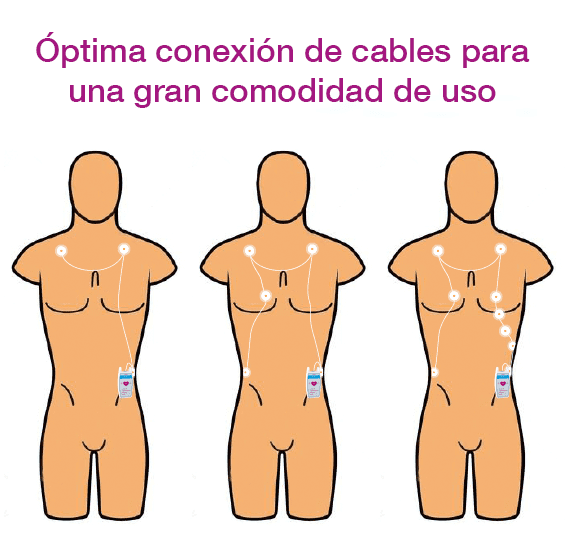 Conexión de cables para ECG